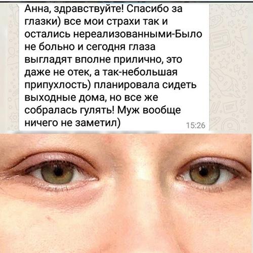 Чем снять отек с глаз
